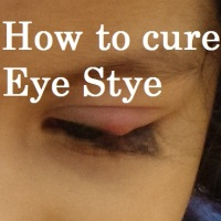 Eye stye: Symptoms & Cure