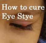 How to cute eye stye in kids